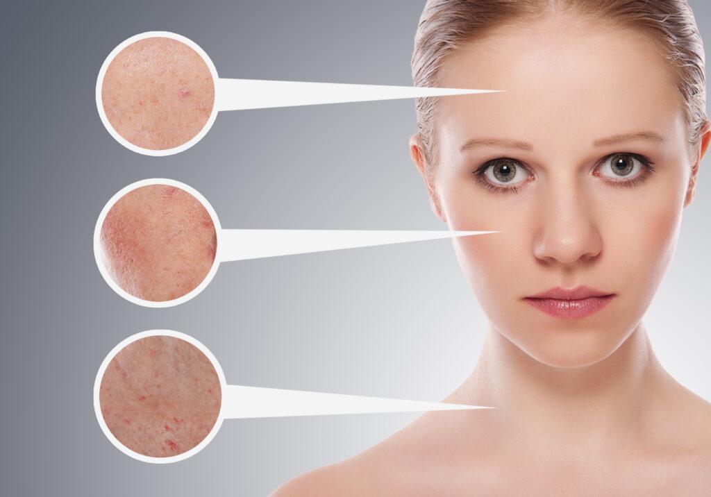 Избавляемся от угрей на проблемных участках кожи