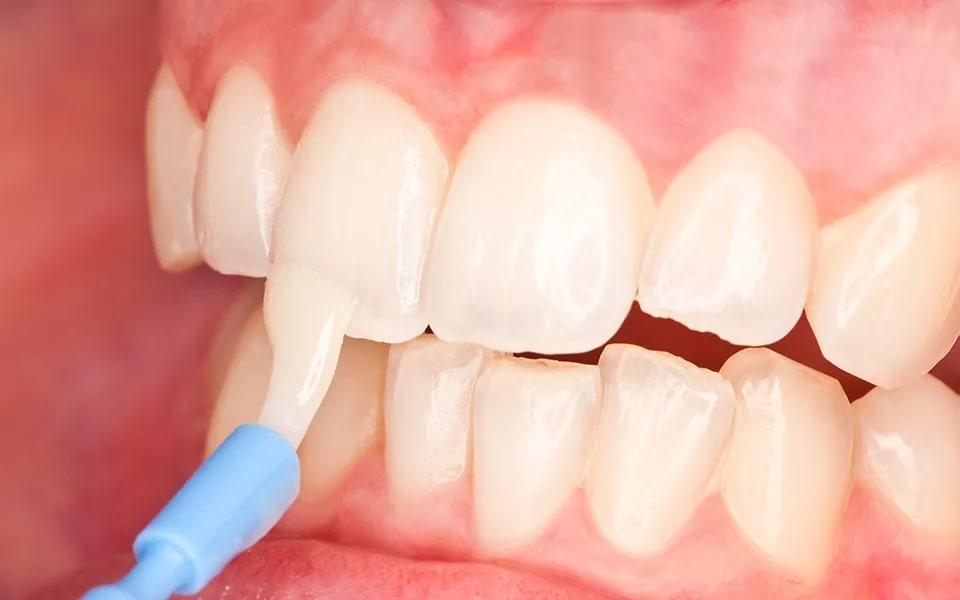 Фторирование и отбеливание зубов